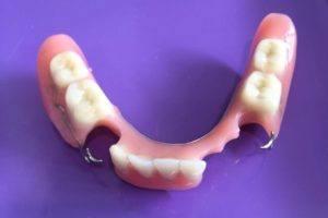 Partiële Prothese, frame - Tandprothetische Praktijk Femke Grashuis