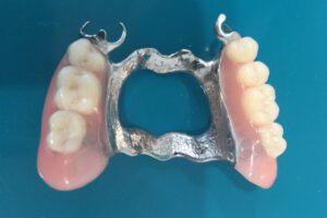 frameprothese, frame prothese, Frame prothese kosten