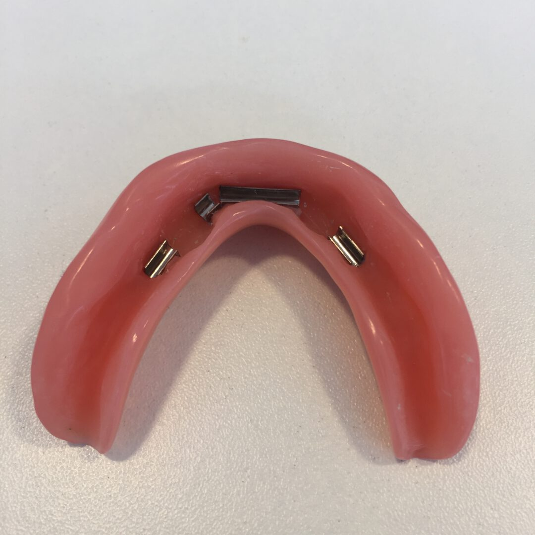 Klikgebit op implantaten met een steg, klik gebit